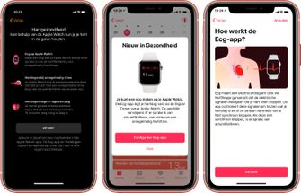 Apple Watch Series 4 ECG Nederland